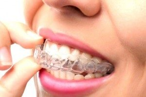 La ortodoncia invisible se hace con materiales especiales que las hacen prácticamente invisibles. En Dentesia Valladolid trabajamos también con ellas.