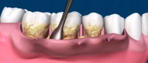 Tras el tratamiento de periodoncia es conveniente un mantenimiento cada 3 o 6 meses