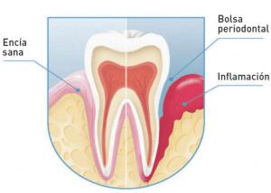 periodoncia en Valladolid, somos profesionales en la realización de tratamientos de las enfermedades periodontales.