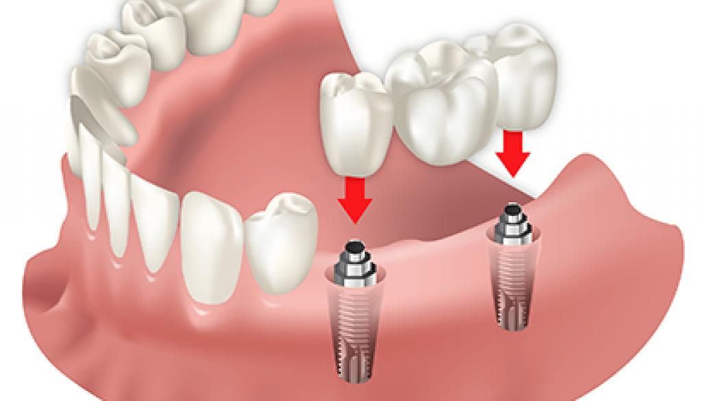 Especialistas en Cirugía dental en Valladolid. Dibujo que explica la colocación de anclajes para tratamientos ortodónticos