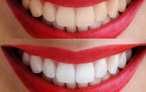 blanqueamiento dental en Valladolid