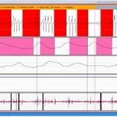 tratamientos de apnea del sueño - lectura del estudio