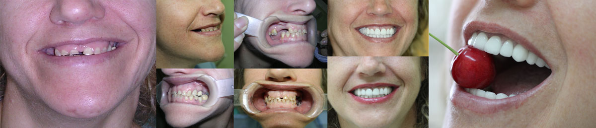 Implante dental en Valladolid
