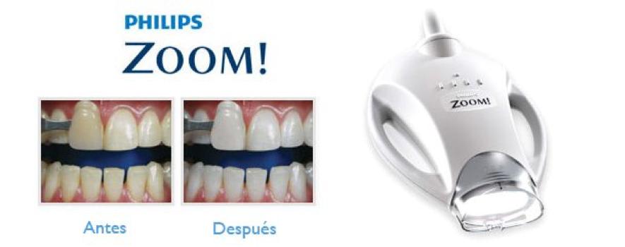 blanqueamiento dental - antes y después