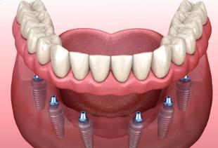 reponer tus dientes